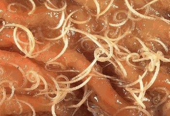 Whipworms in an intestine. From http://www.sciencebasedmedicine.org/tag/whipworms/.