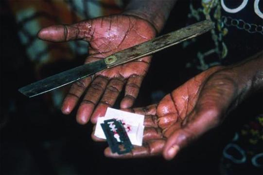 From Flavourmag. Tools used in female genital mutilation.